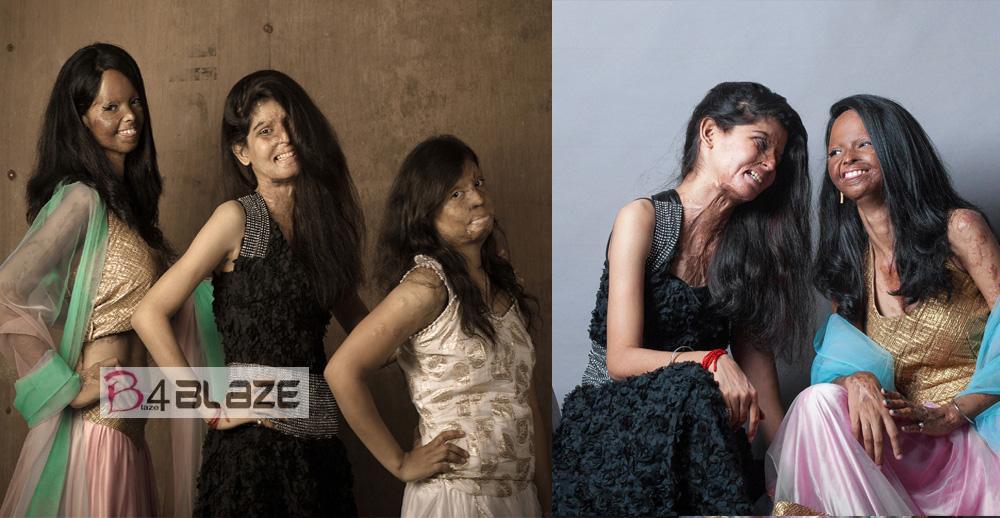 Acid attack survivors photoshoot