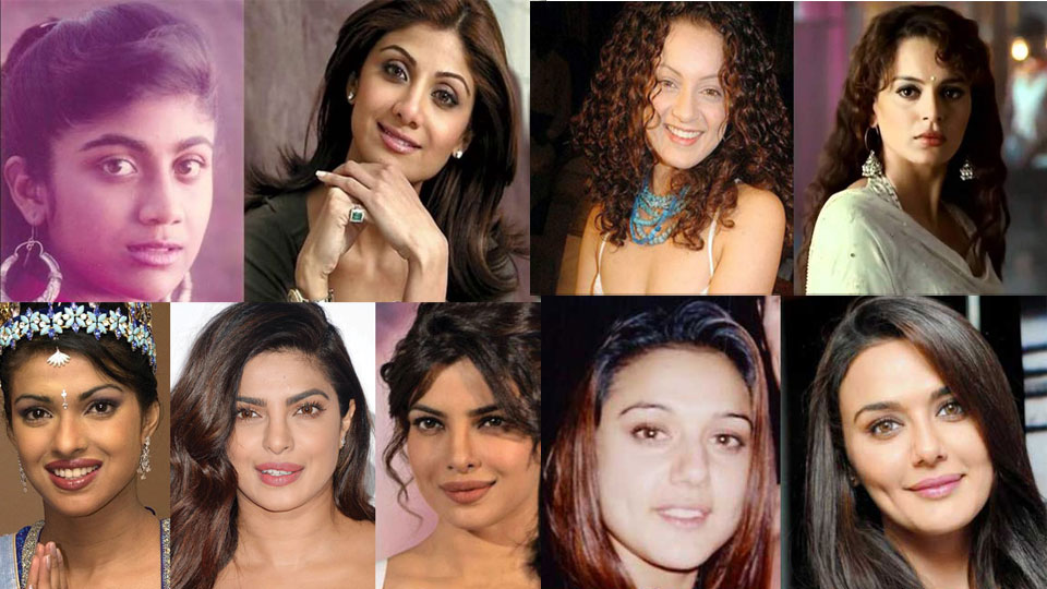 Actresses before plastic surgery